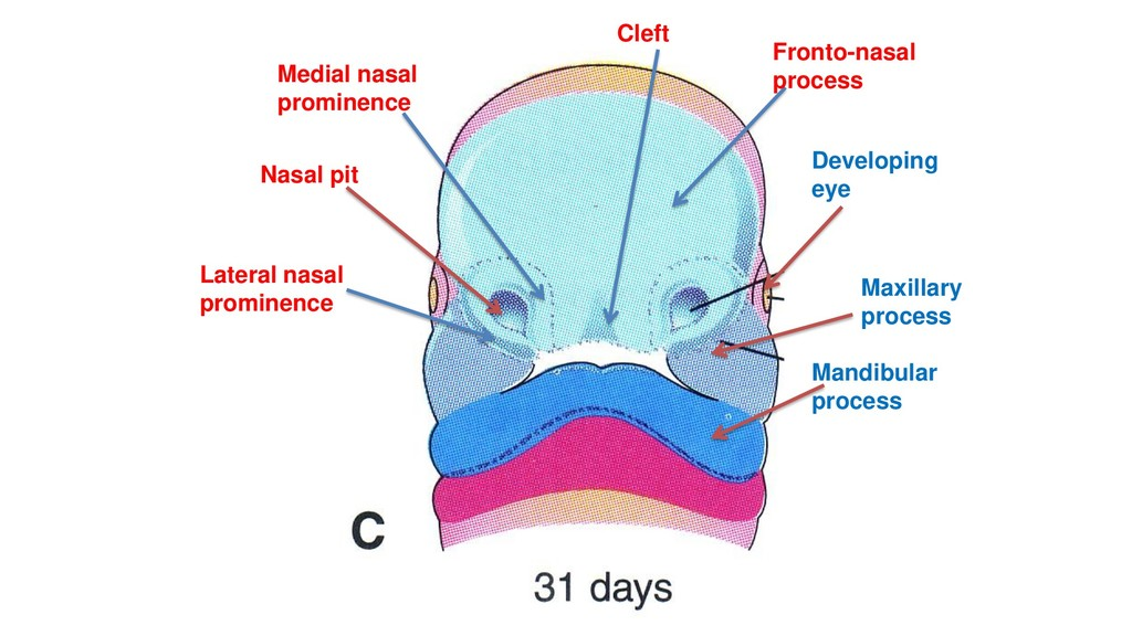 Cleft Medial nasal prominence Lateral nasal pro...