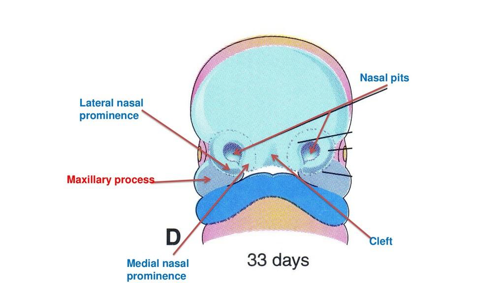 Nasal pits Cleft Medial nasal prominence Latera...