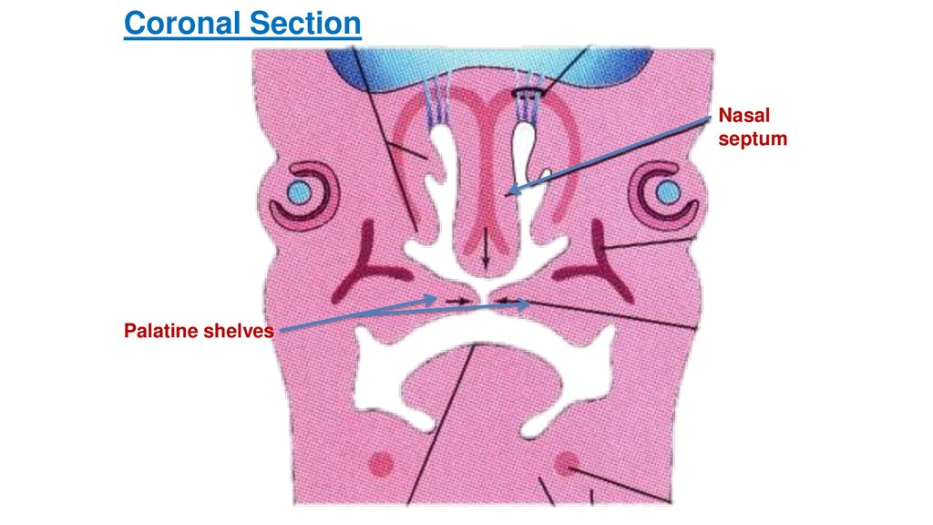 Palatine shelves Nasal septum Coronal Section