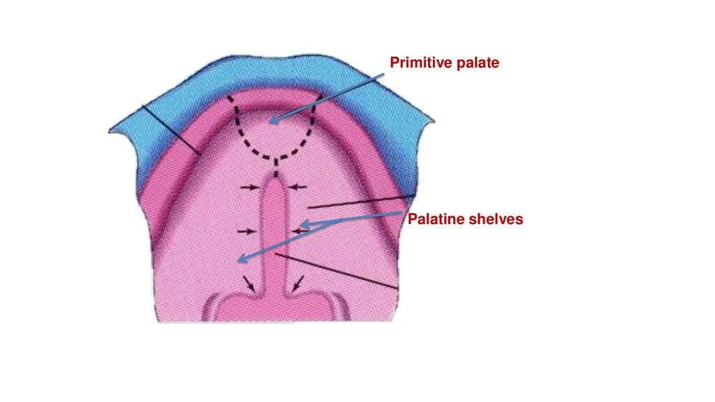 Primitive palate Palatine shelves