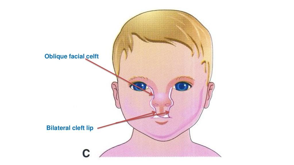 Oblique facial celft Bilateral cleft lip
