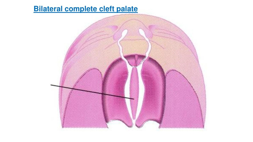 Bilateral complete cleft palate