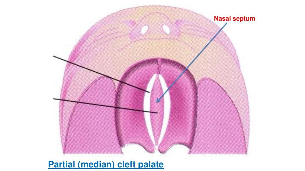 Nasal septum Partial (median) cleft palate