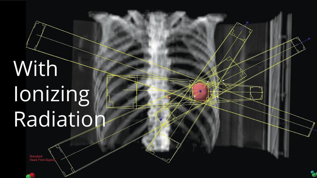 With Ionizing Radiation