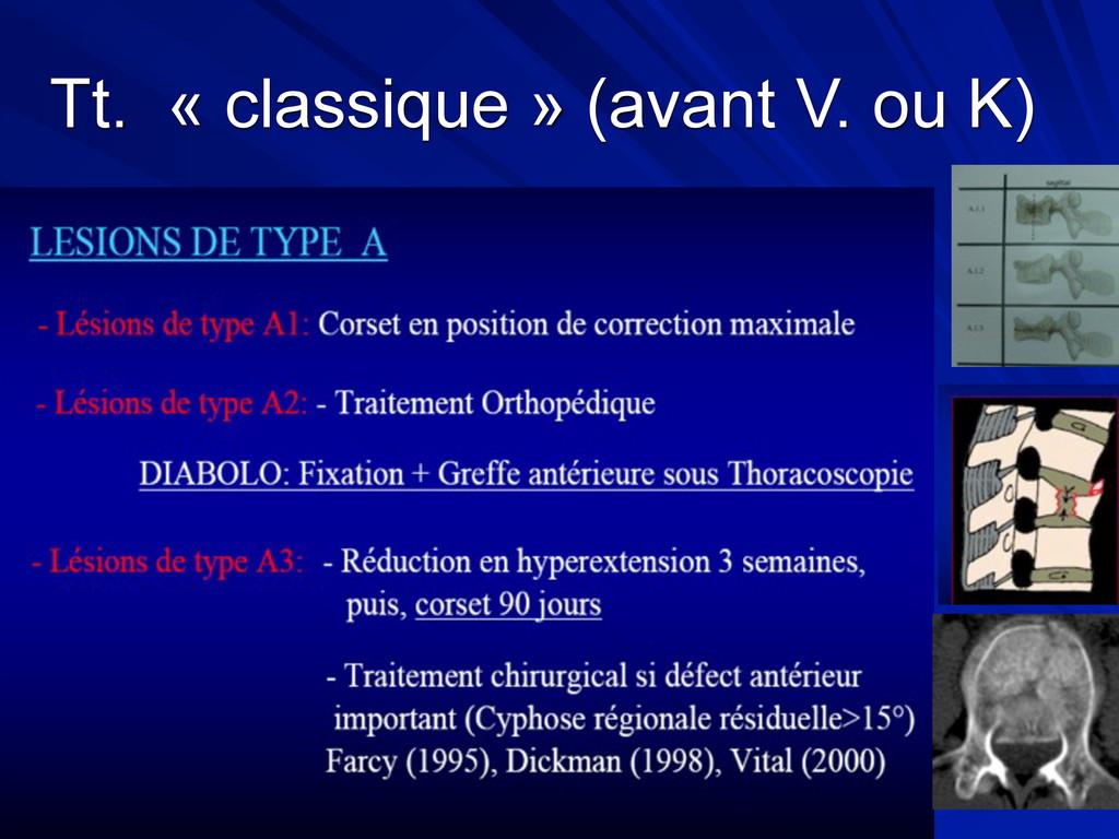 Tt. « classique » (avant V. ou K)