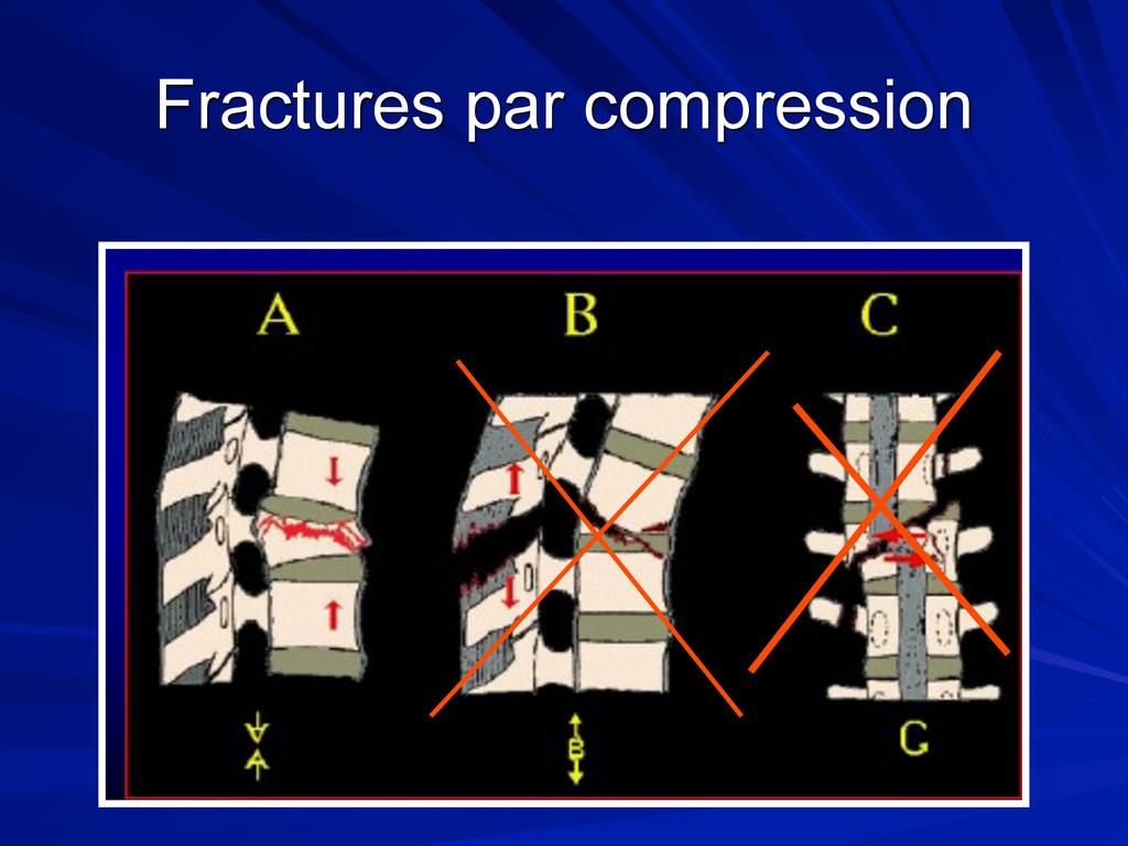 Fractures par compression
