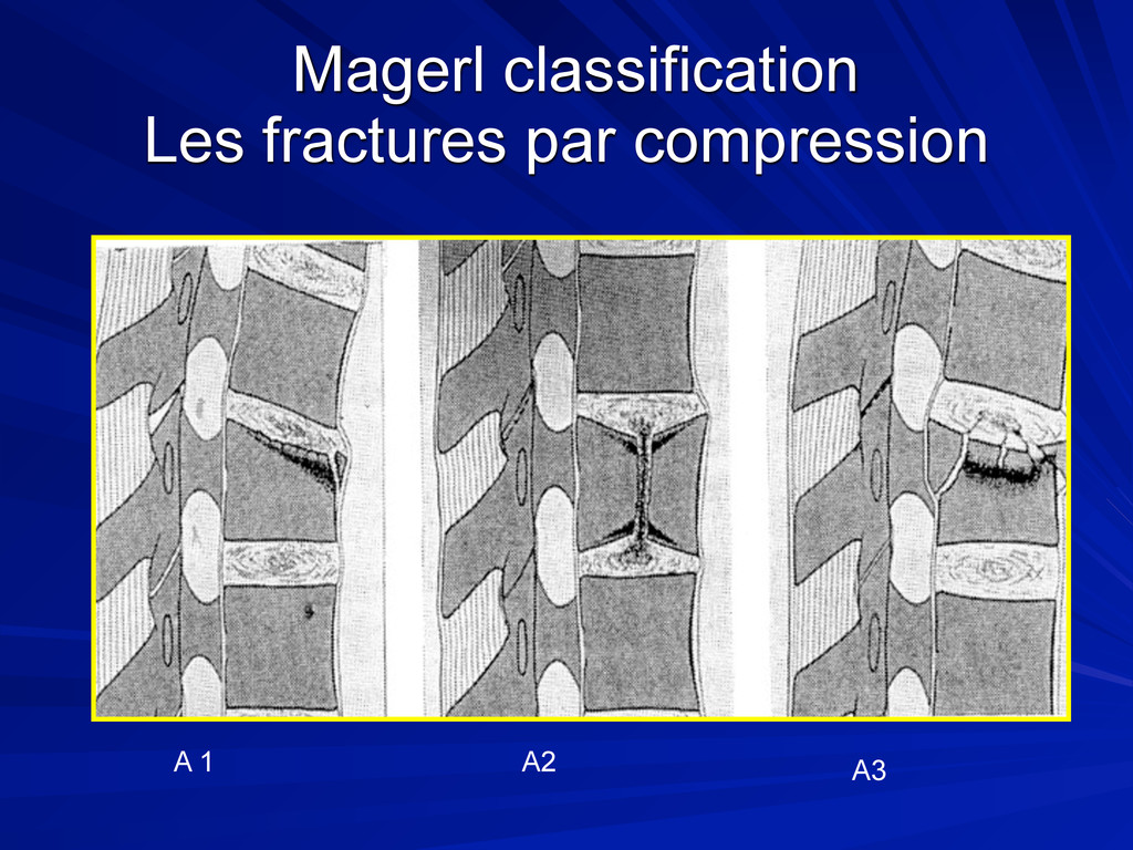 Magerl classification Les fractures par compres...