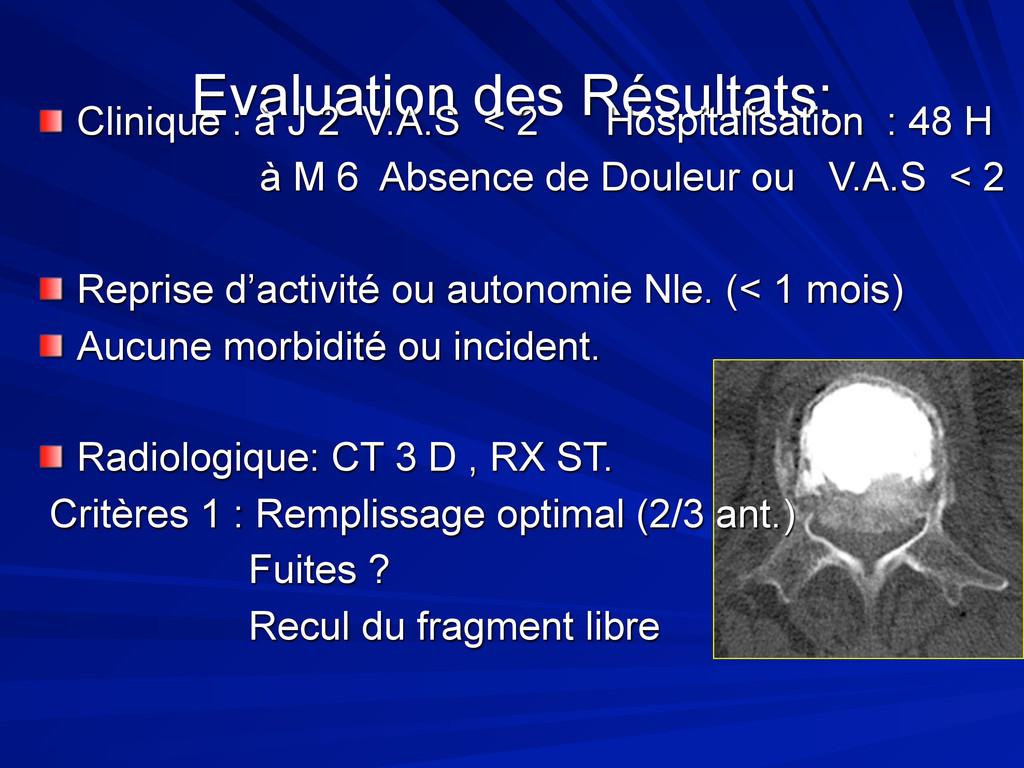 Evaluation des Résultats: Clinique : à J 2 V.A....