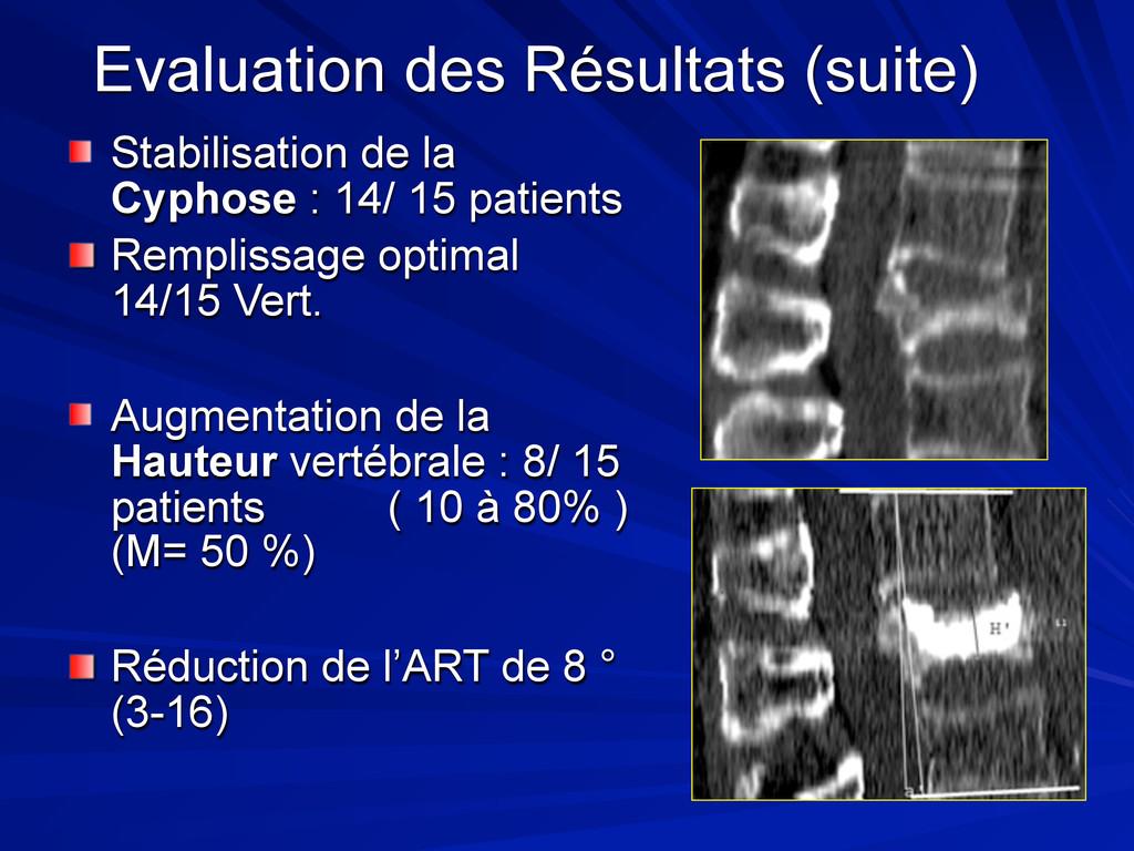 Evaluation des Résultats (suite) Stabilisation ...