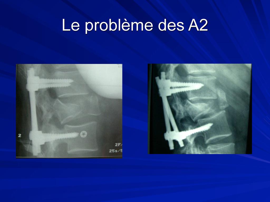 Le problème des A2