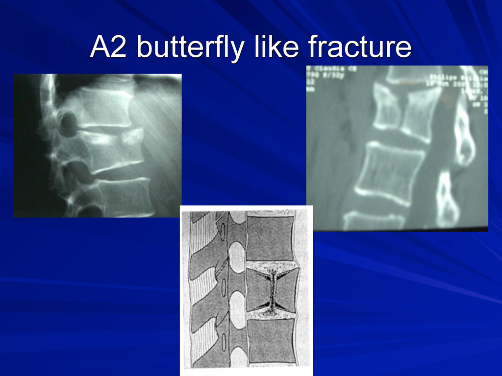 A2 butterfly like fracture