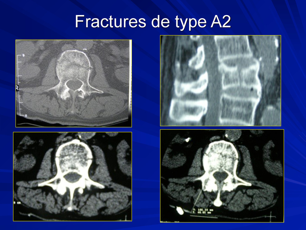 Fractures de type A2