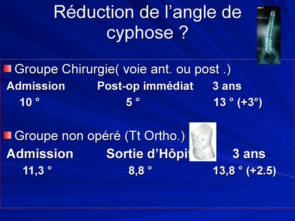 Réduction de l'angle de cyphose ? Groupe Chirur...