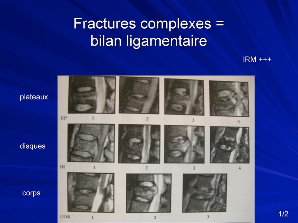 Fractures complexes = bilan ligamentaire platea...