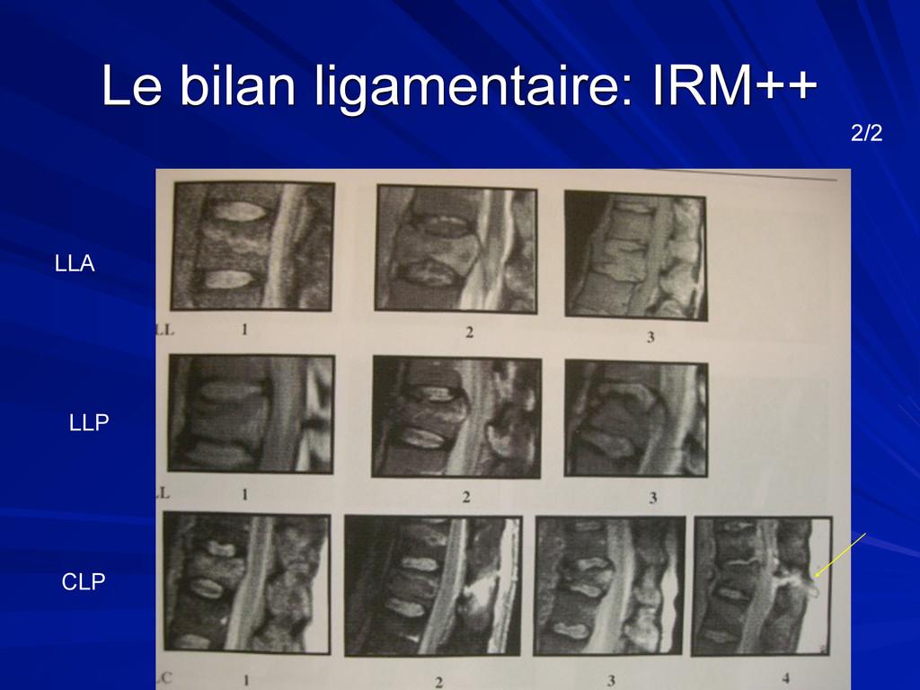 Le bilan ligamentaire: IRM++ 2/2 LLA LLP CLP