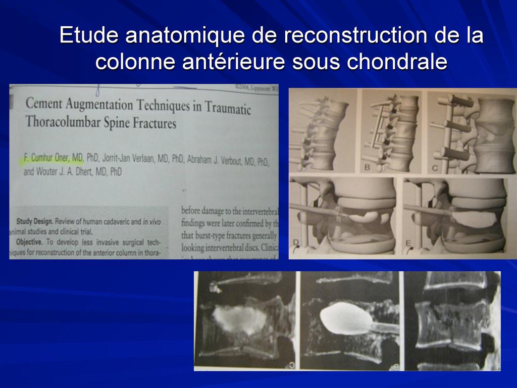 Etude anatomique de reconstruction de la colonn...