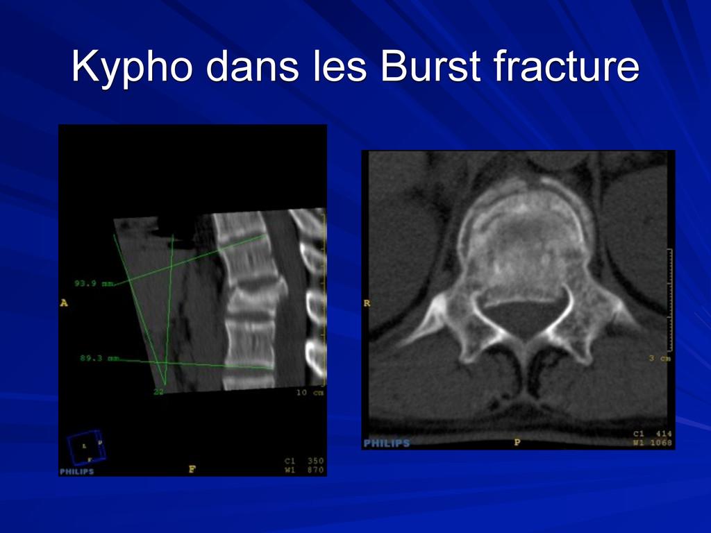 Kypho dans les Burst fracture