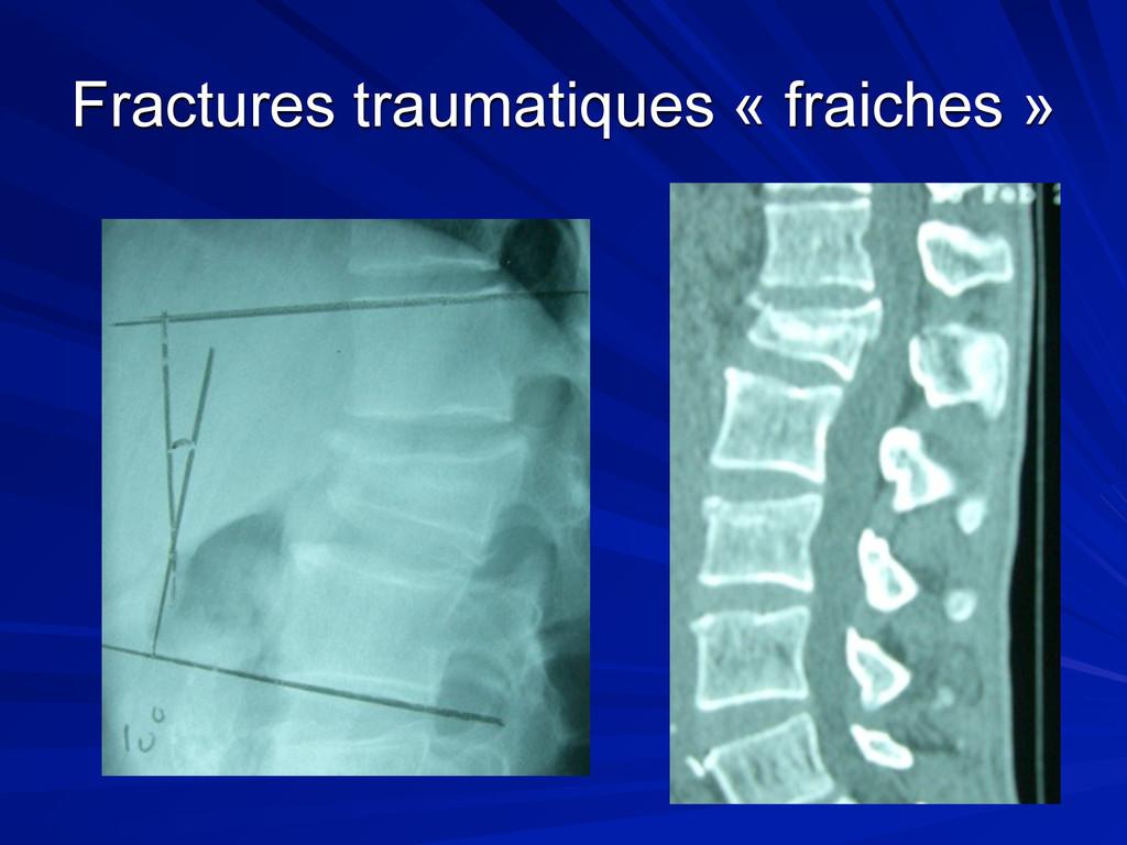 Fractures traumatiques « fraiches »