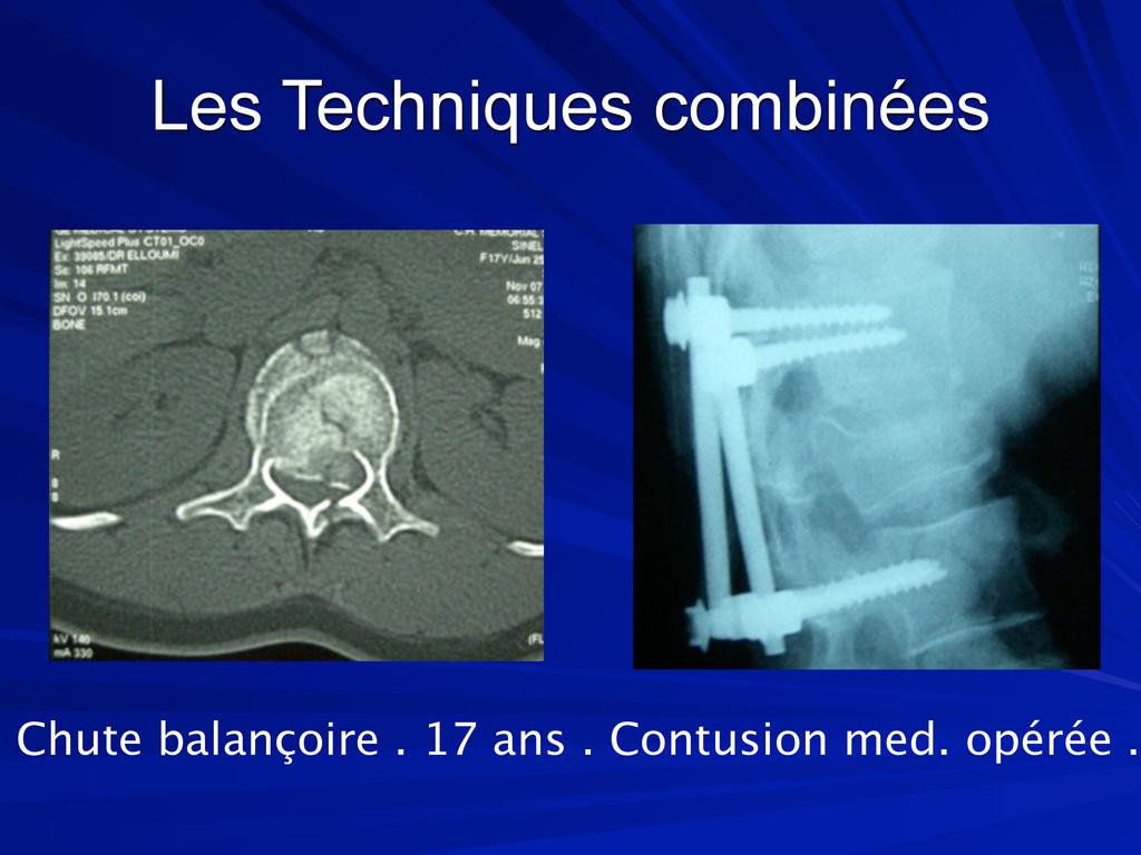Les Techniques combinées Chute balançoire . 17 ...