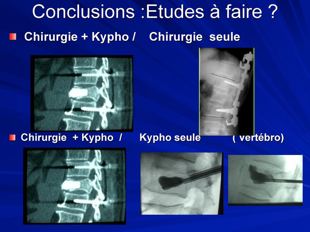 Conclusions :Etudes à faire ? Chirurgie + Kypho...