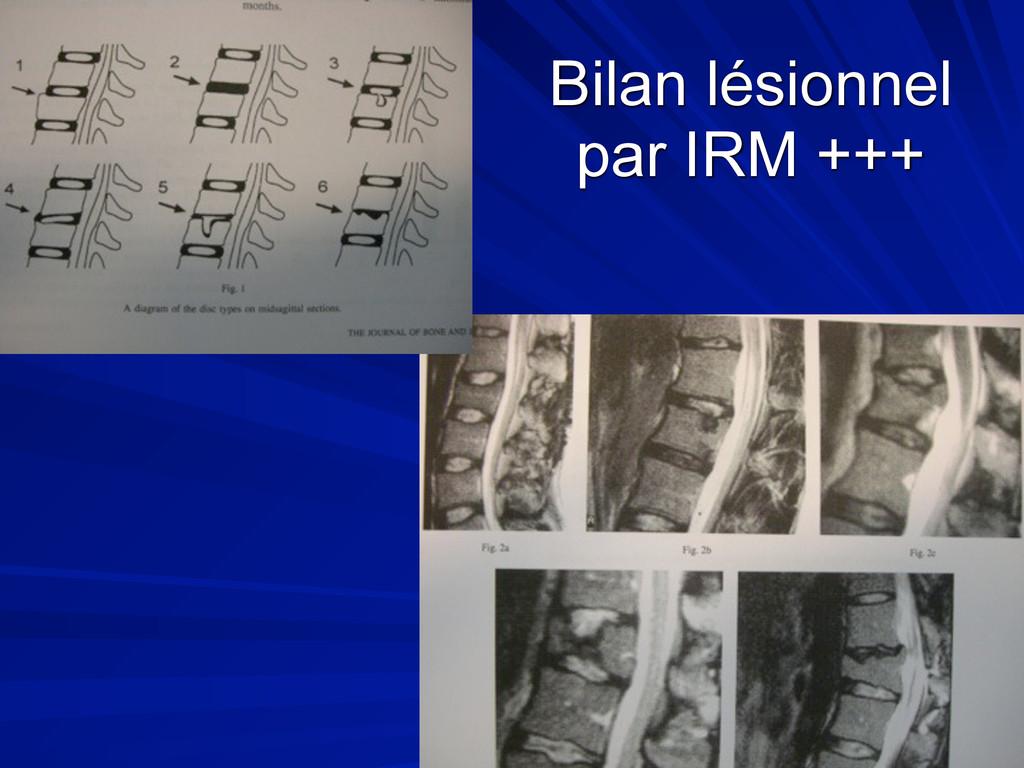 Bilan lésionnel par IRM +++