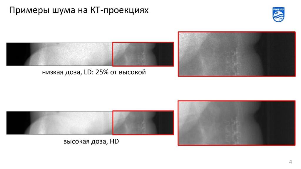 Примеры шума на КТ-проекциях 4 низкая доза, LD:...