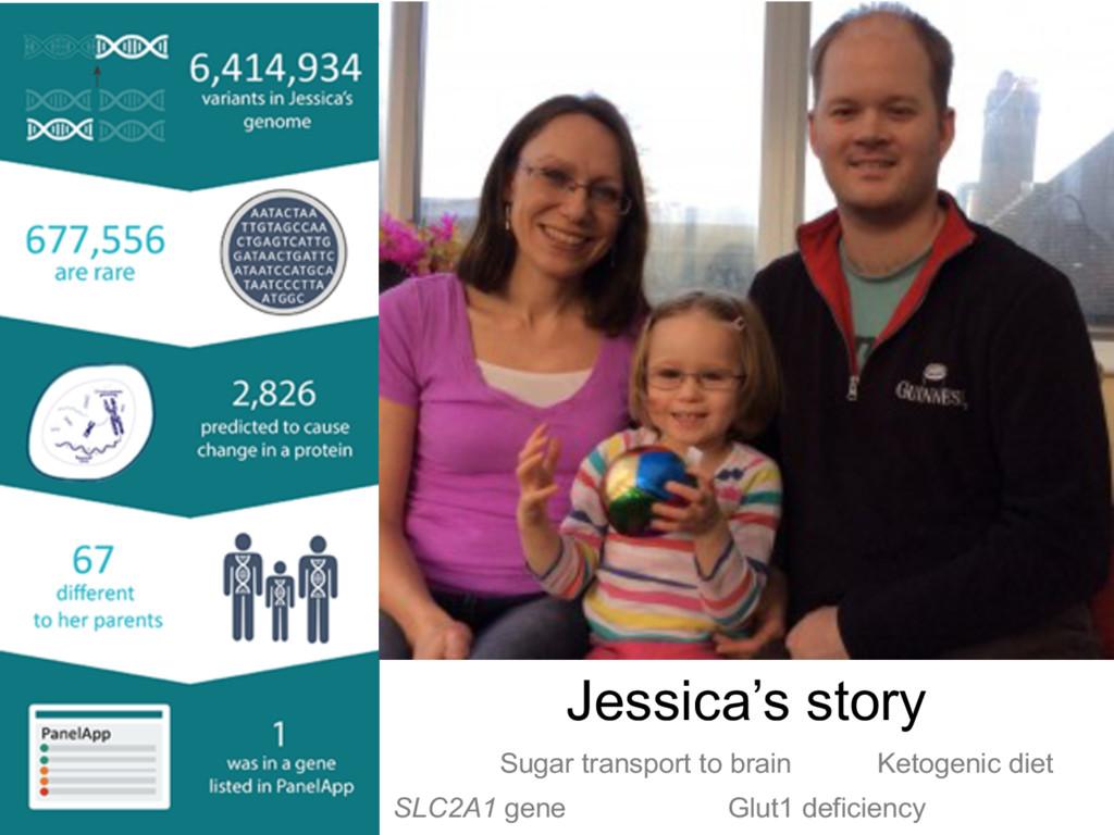 Jessica's story SLC2A1 gene Glut1 deficiency Su...