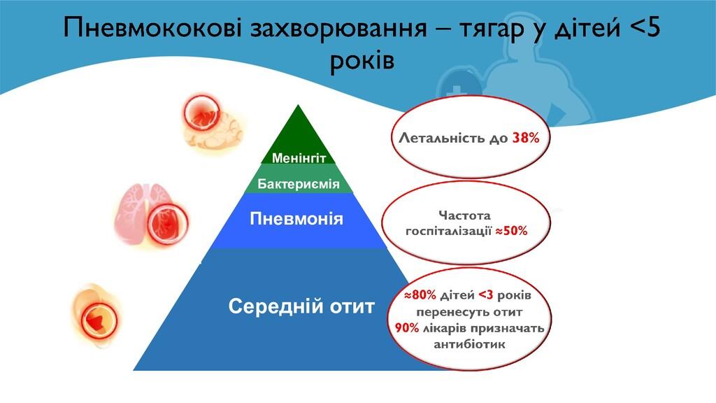 Бактериємія Пневмонія Менінгіт Середній отит ≈ ≈