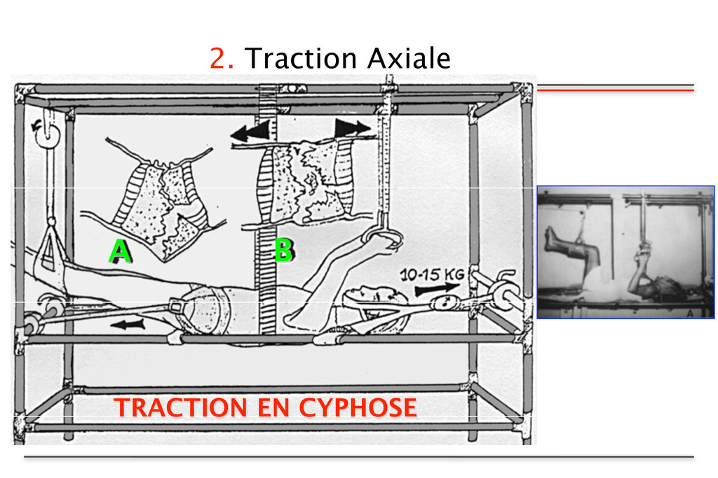 2. Traction Axiale TRACTION EN CYPHOSE A B