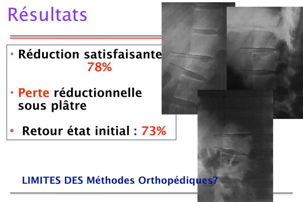 Résultats • Réduction satisfaisante 78% • Pert...