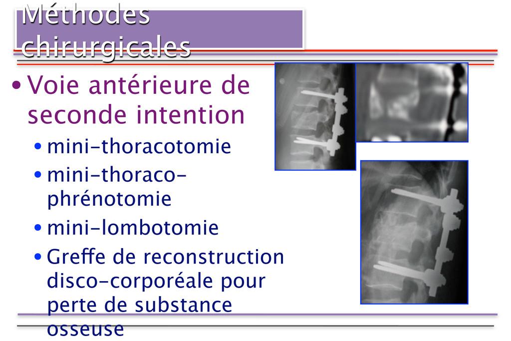 Méthodes chirurgicales •Voie antérieure de seco...