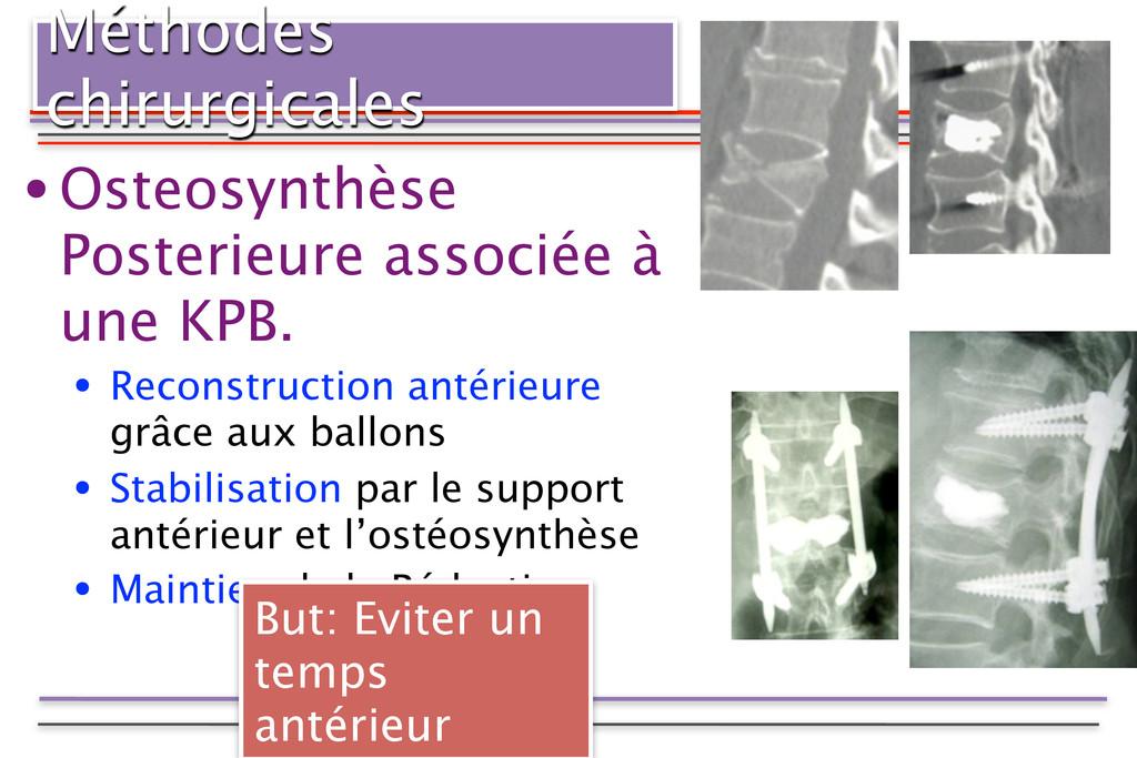Méthodes chirurgicales •Osteosynthèse Posterieu...