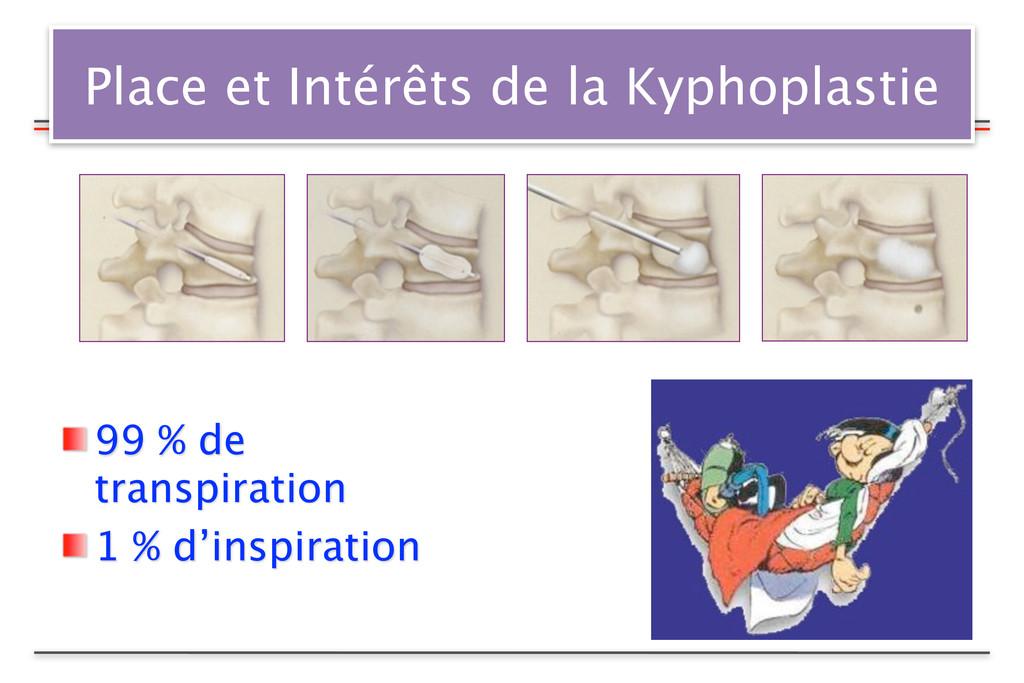 Place et Intérêts de la Kyphoplastie 99 % de tr...