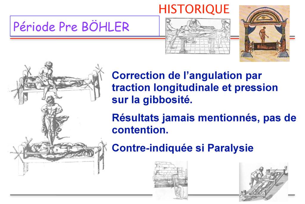 HISTORIQUE Période Pre BÖHLER Correction de l'a...