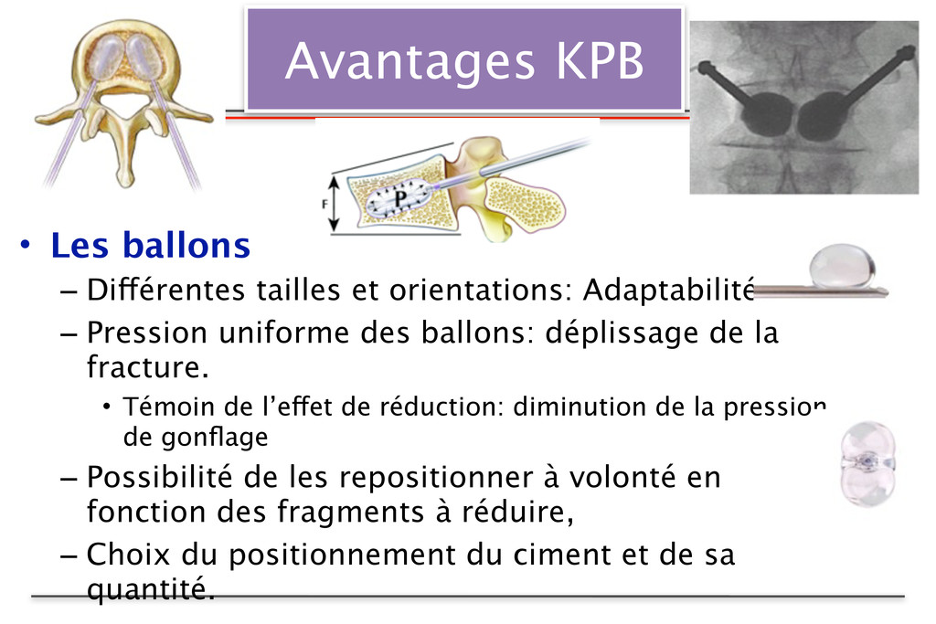 Avantages KPB • Les ballons – Différentes taill...