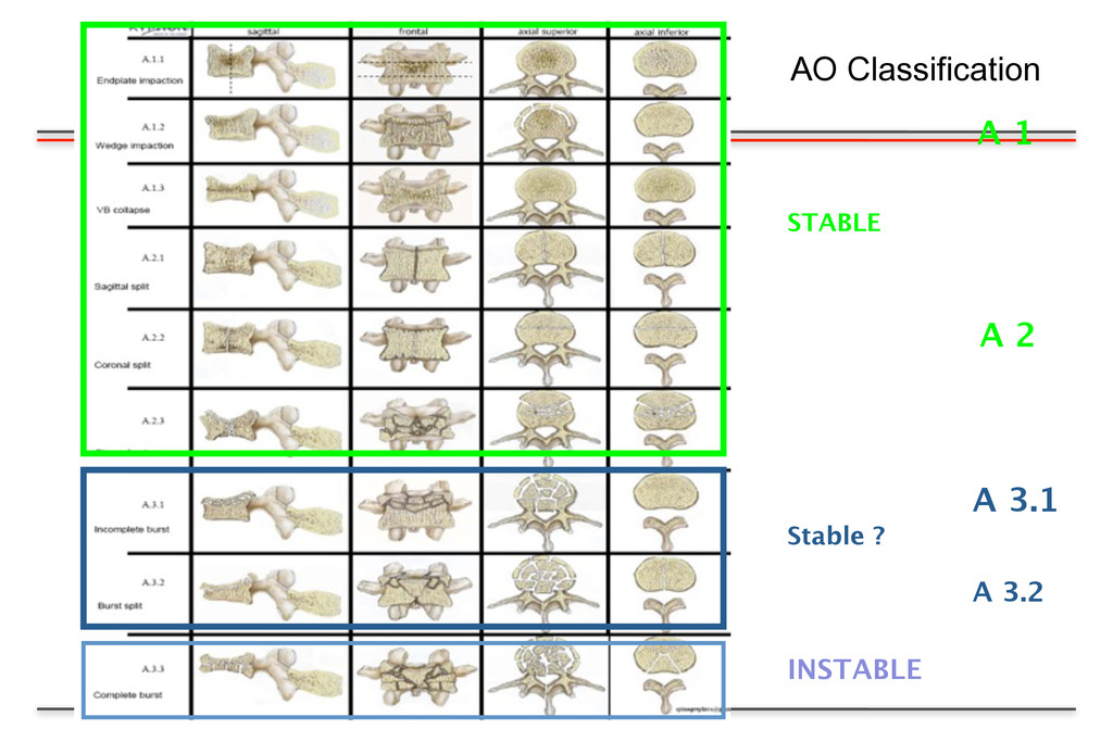 A 1 A 3.1 A 3.2 STABLE A 2 INSTABLE Stable ? AO...