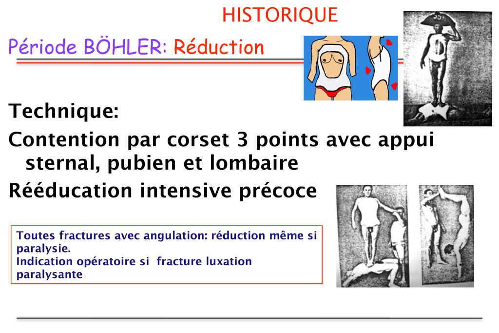 HISTORIQUE Période BÖHLER: Réduction Technique:...
