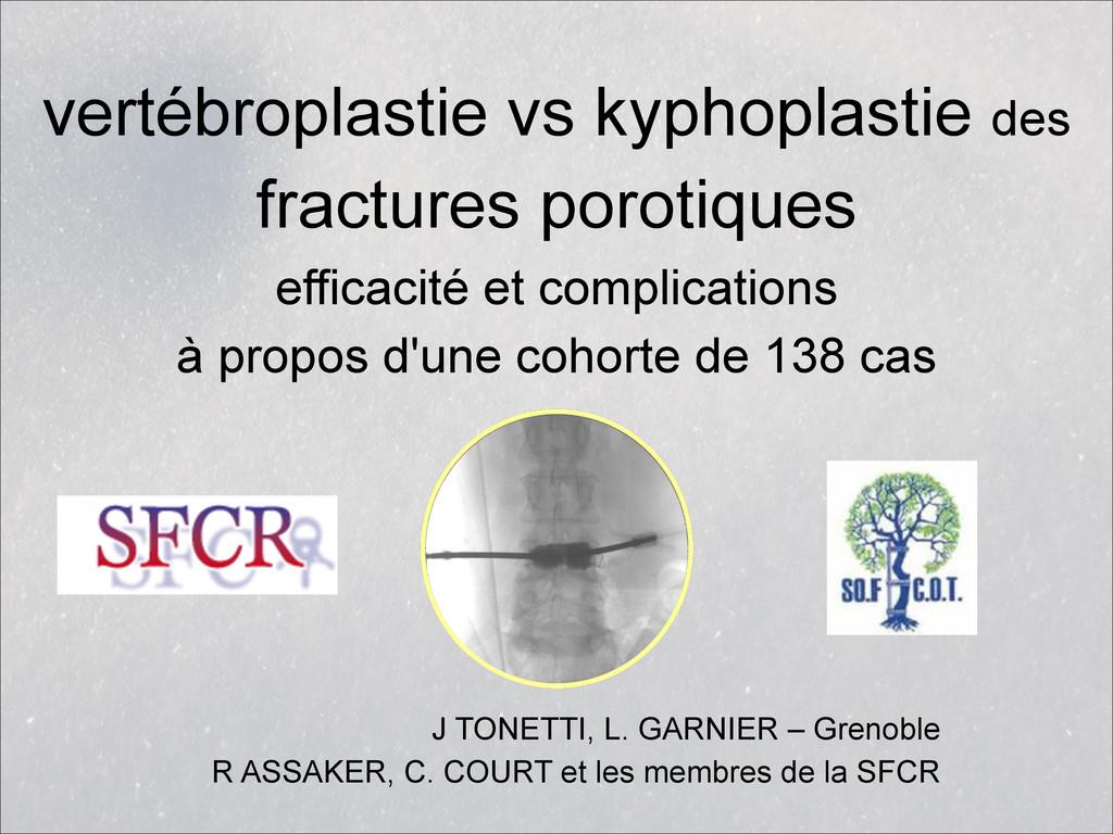vertébroplastie vs kyphoplastie des  fractures...