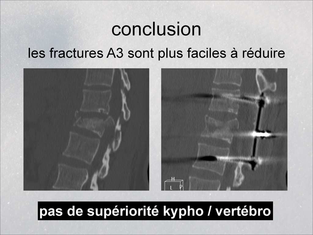 conclusion les fractures A3 sont plus faciles à...