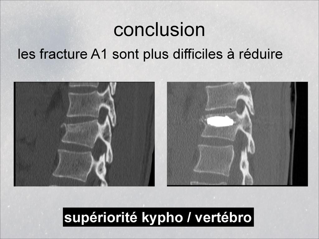 conclusion les fracture A1 sont plus difficiles...