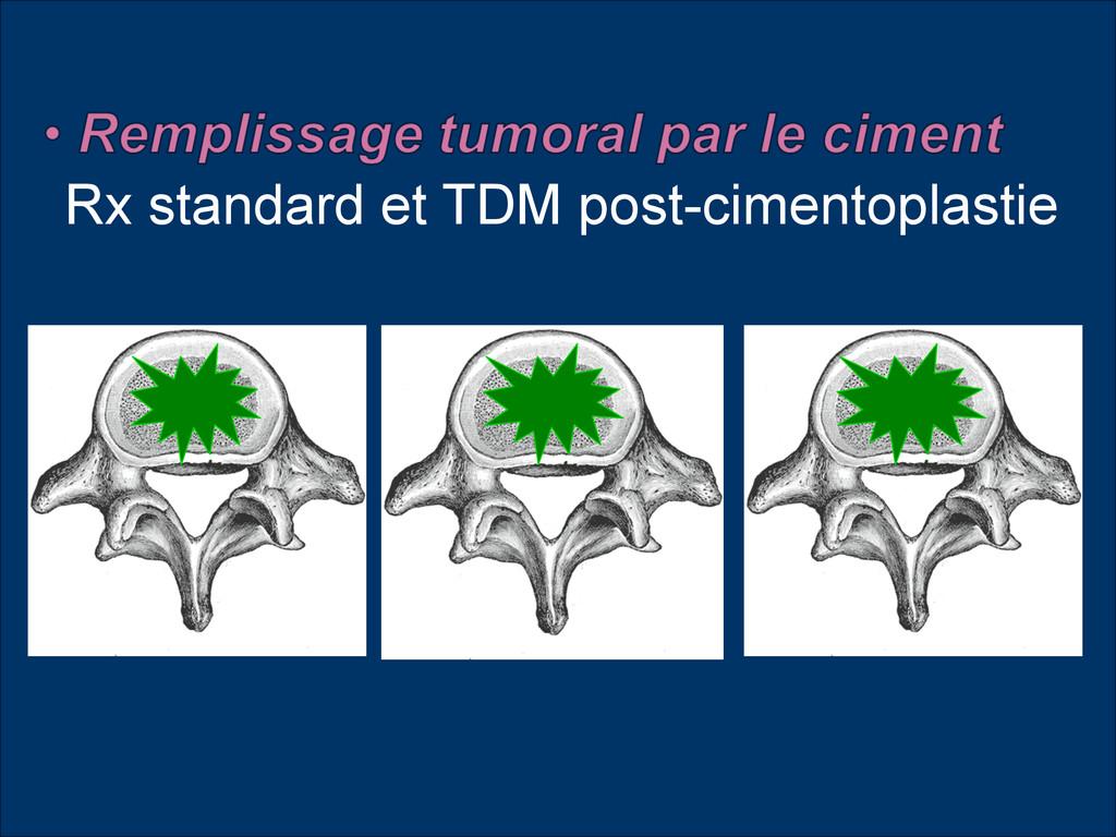 Rx standard et TDM post-cimentoplastie