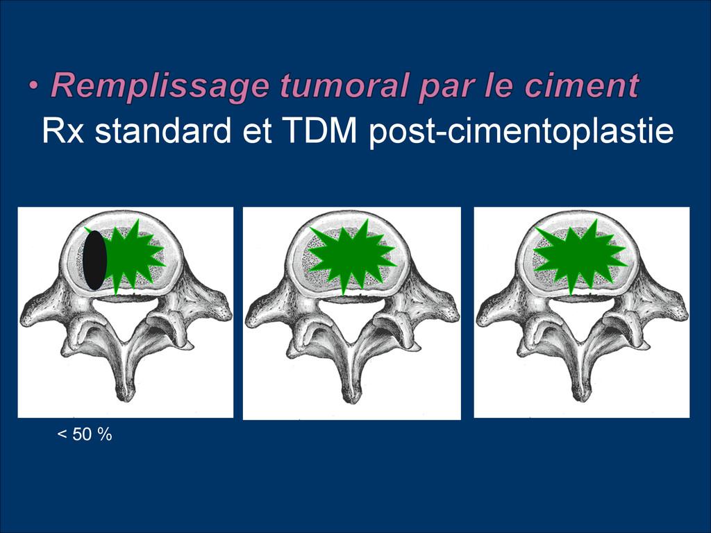 Rx standard et TDM post-cimentoplastie < 50 %