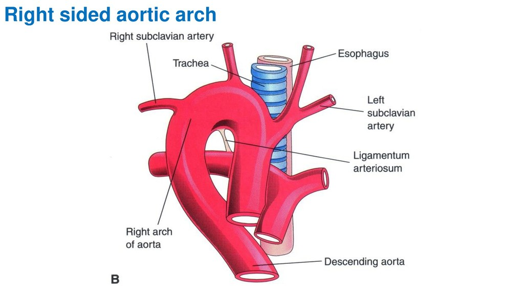 Right sided aortic arch