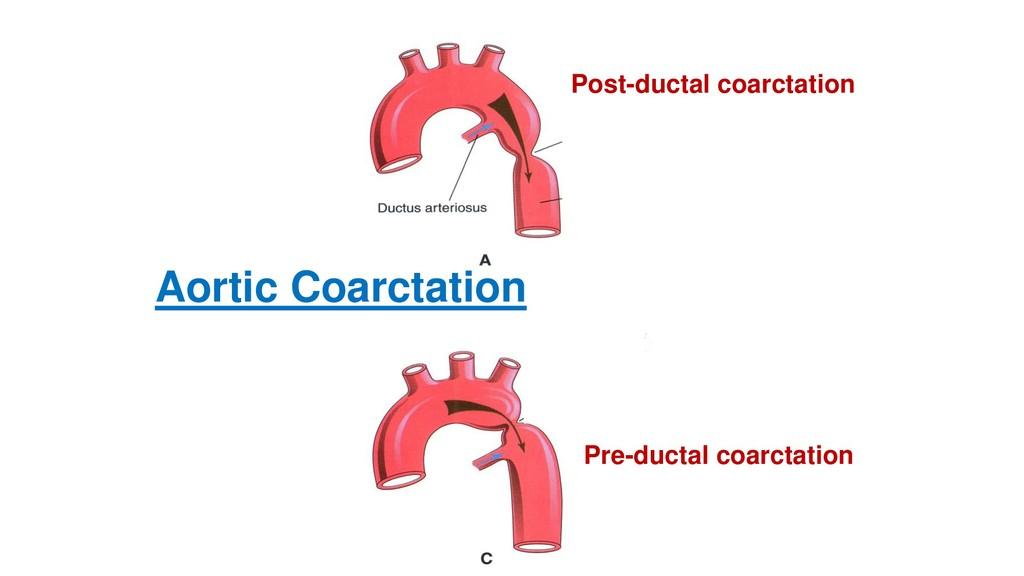 Aortic Coarctation Post-ductal coarctation Pre-...