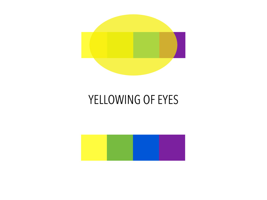YELLOWING OF EYES