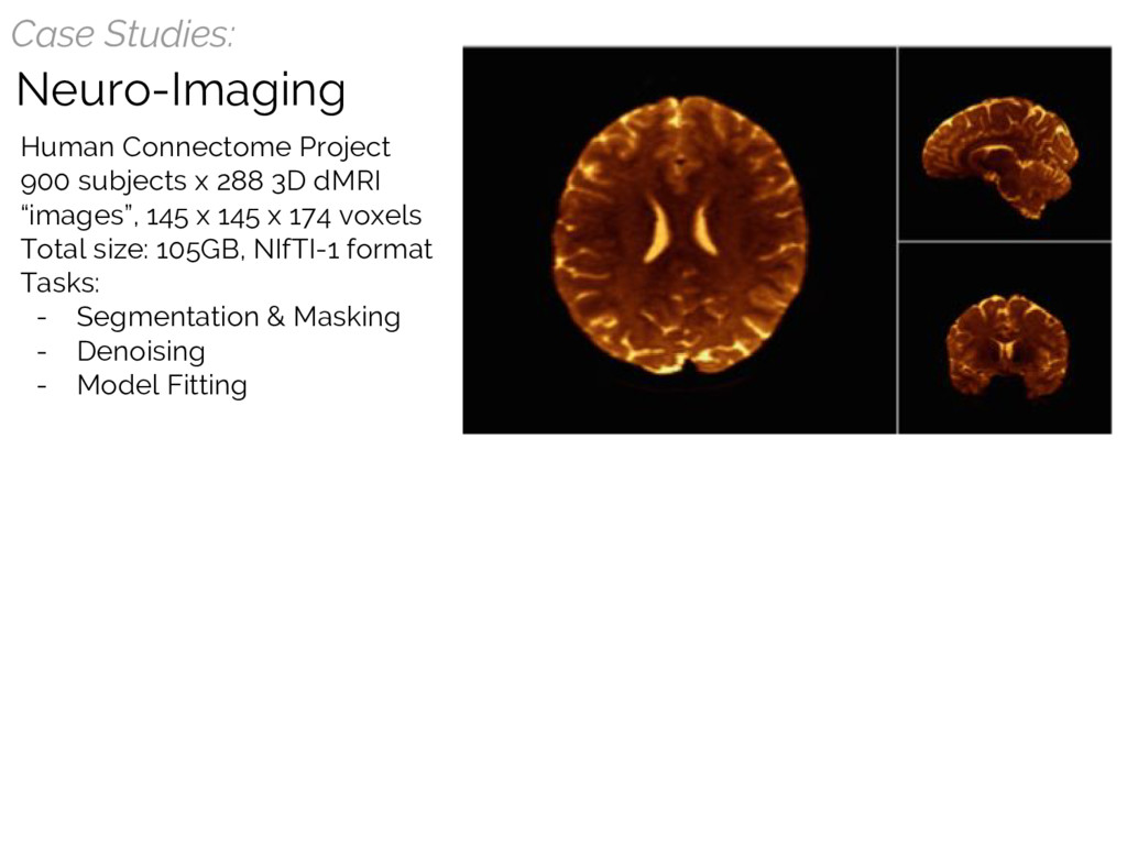 Case Studies: Neuro-Imaging Human Connectome Pr...