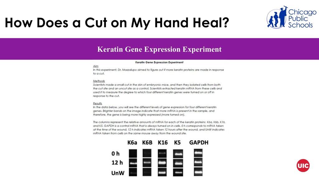 How Does a Cut on My Hand Heal? Keratin Gene Ex...