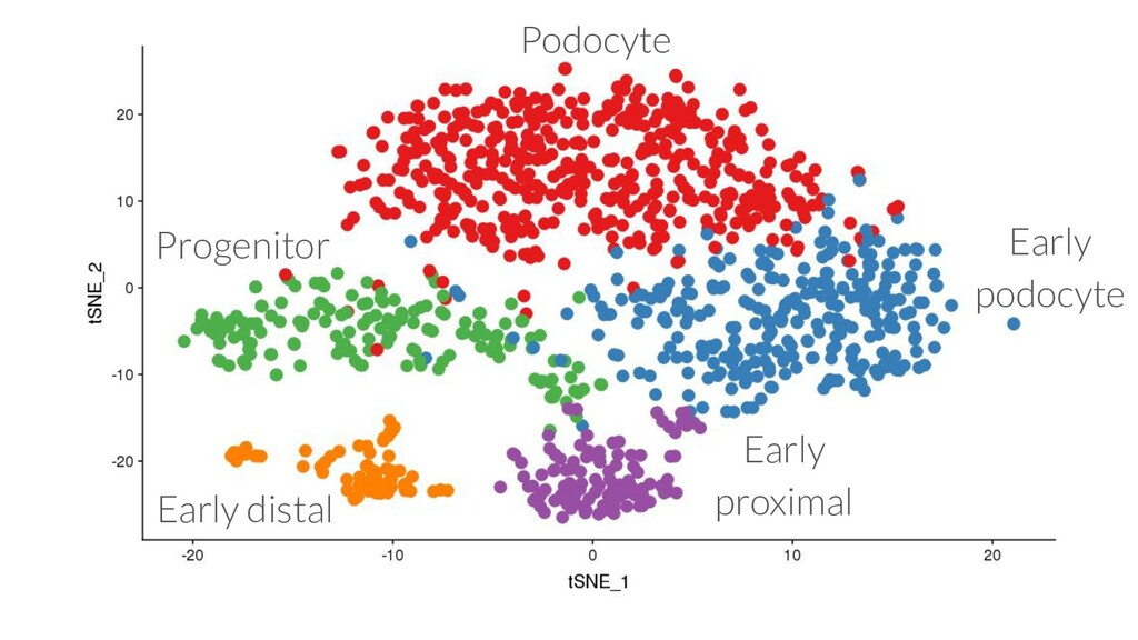 Podocyte Early podocyte Early proximal Early di...