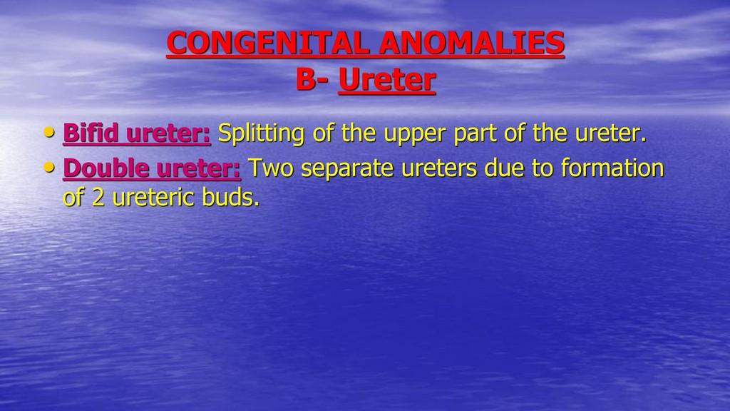 CONGENITAL ANOMALIES B- Ureter • Bifid ureter: ...