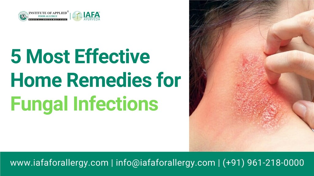 5 Most Effective Home Remedies for Fungal Infec...